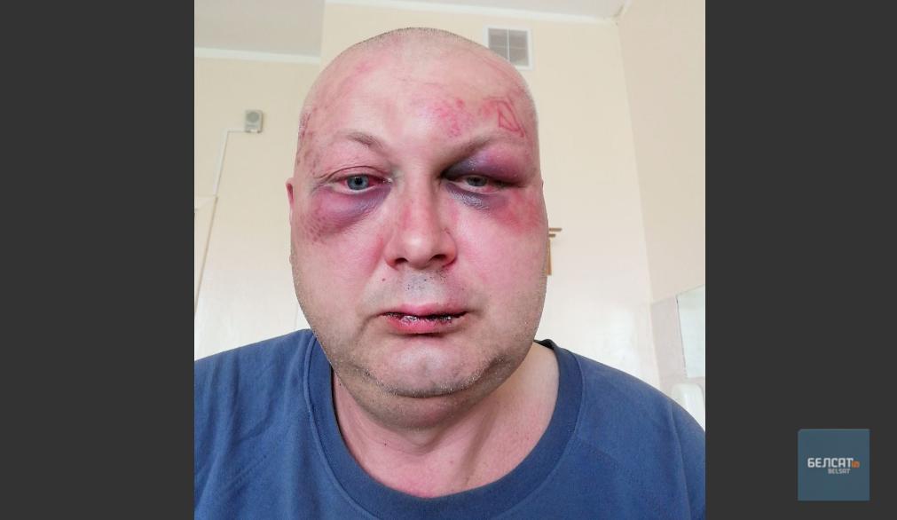 Виталий Сорока после избиения